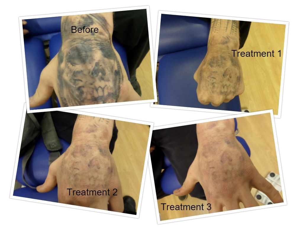 Removal in just 3 Treatments
