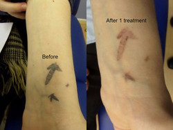After just one treatment