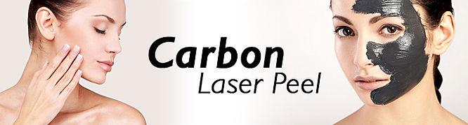 Carbon-Laser-Peel.jpg