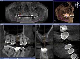 3d imaging (2).jpg