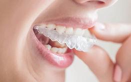 dental invisalign.jpg