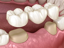 dental bridge.jpg