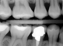 digital dental xray.JPG