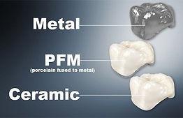 dental crown picture.jpg