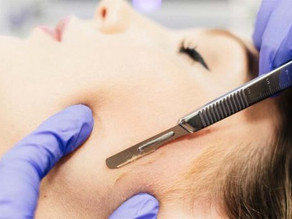 10 Quick Facts About Dermaplaning