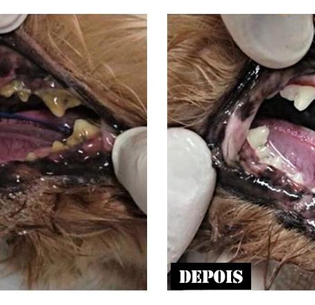 Tartarectomia - Limpeza dos dentes