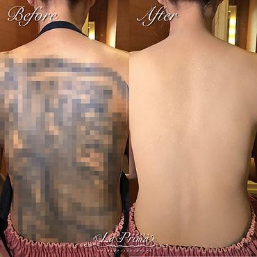 背中のタトゥー(刺青)をタトゥーカバー