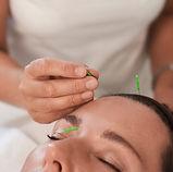 akupunktur.jpg