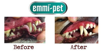 teeth cleaing before and after results