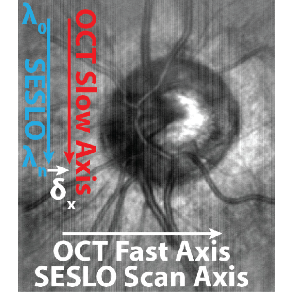 Ophthalmic OCT and SLO