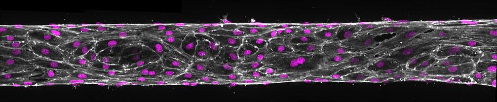 Microfluidic blood vessel