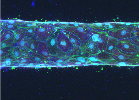 Grant awarded to model lymphatic malformations