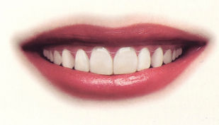20071120-Fig 15 Invisalign smile.jpg