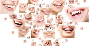 Güzel Bir Gülüş