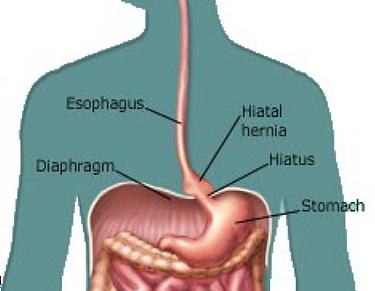 Hiatus hernia.png