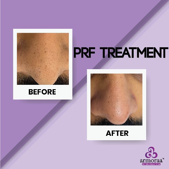 PRF Treatment - BEFORE AND AFTER