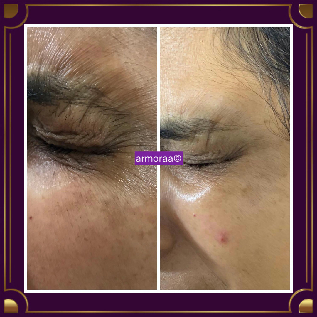 Botox for eye wrinkles