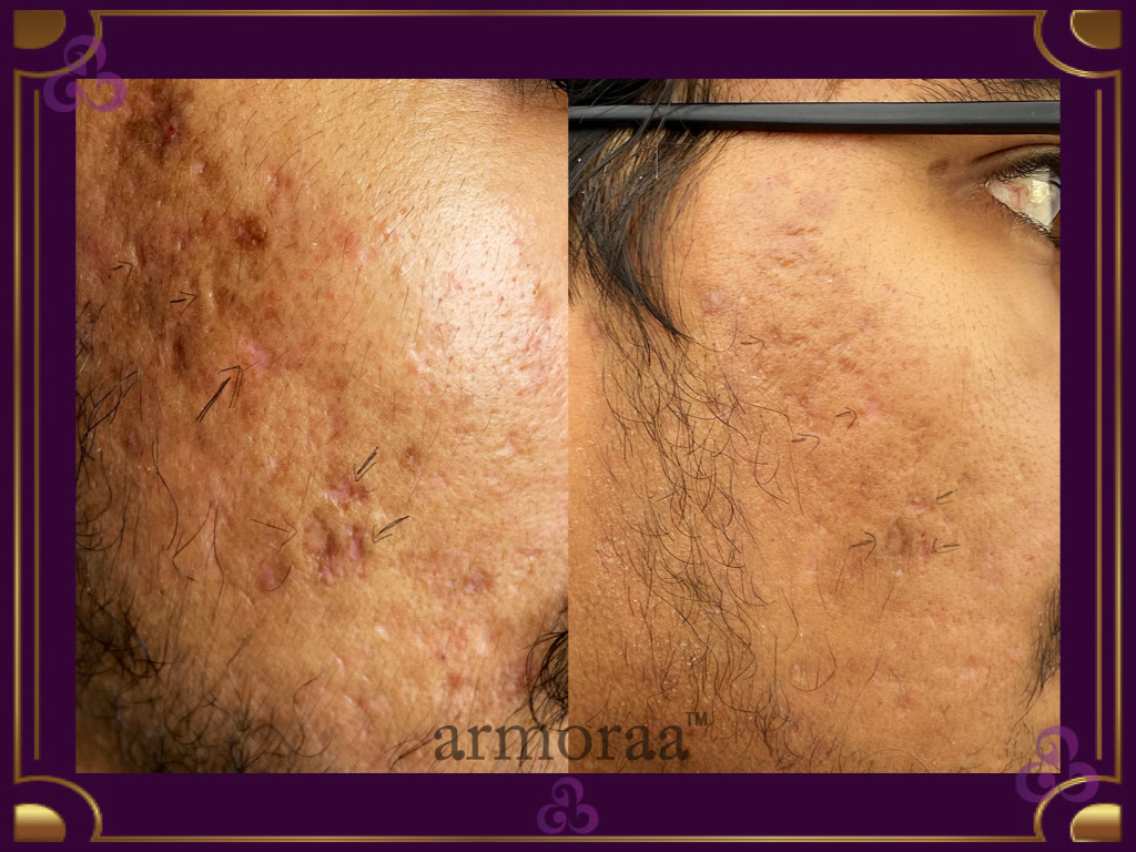 Acne Before After