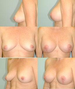 liftimplant4.jpg