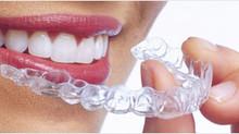 יישור שיניים במבוגרים