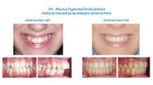 טיפול בשיניים צפופות ובולטות