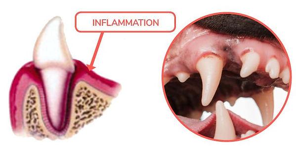 Dental-Disease-Gingivitits Stage 1.jpg