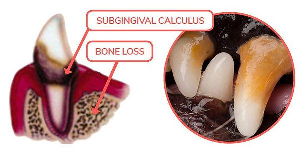 Dental-Disease-Tartar Stage 2.jpg