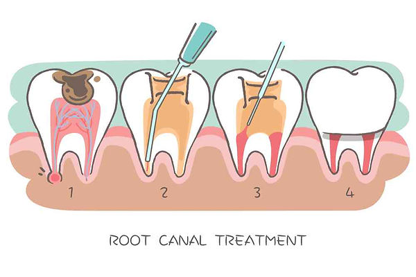 root canal 3.jpg
