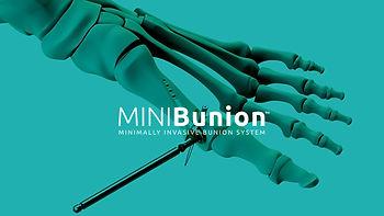 MiniBunion-Crossroads-for-minimally-inva