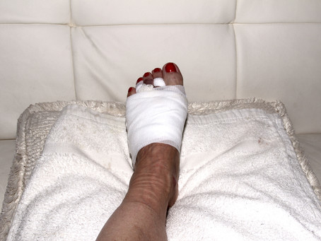 What Are The Different Types Of Foot Surgery?