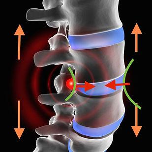 Esquema de tratamiento de fisioterapia de hernia discal y protusiones discales. Descompresión del raquis de manera increiblemente efectiva. Resultados excelerntes en artrosis y lesiones del disco intervertebral. Hernias discales cervicales y lumbares.
