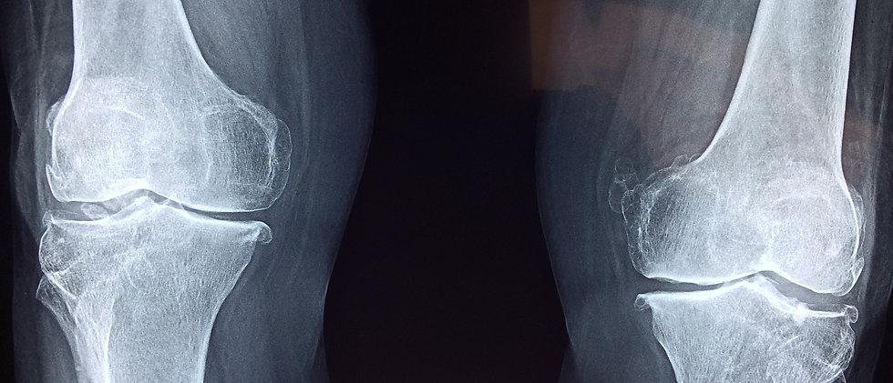 Radiografía de rodillas