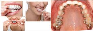 Ortodoncia Slide.jpg
