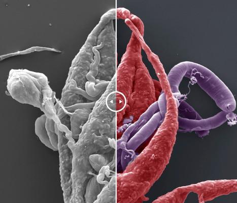 Edição de fotomicrografia de varredura (MEV)