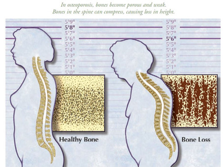 How you Grow Shorter over time - Osteoporosis