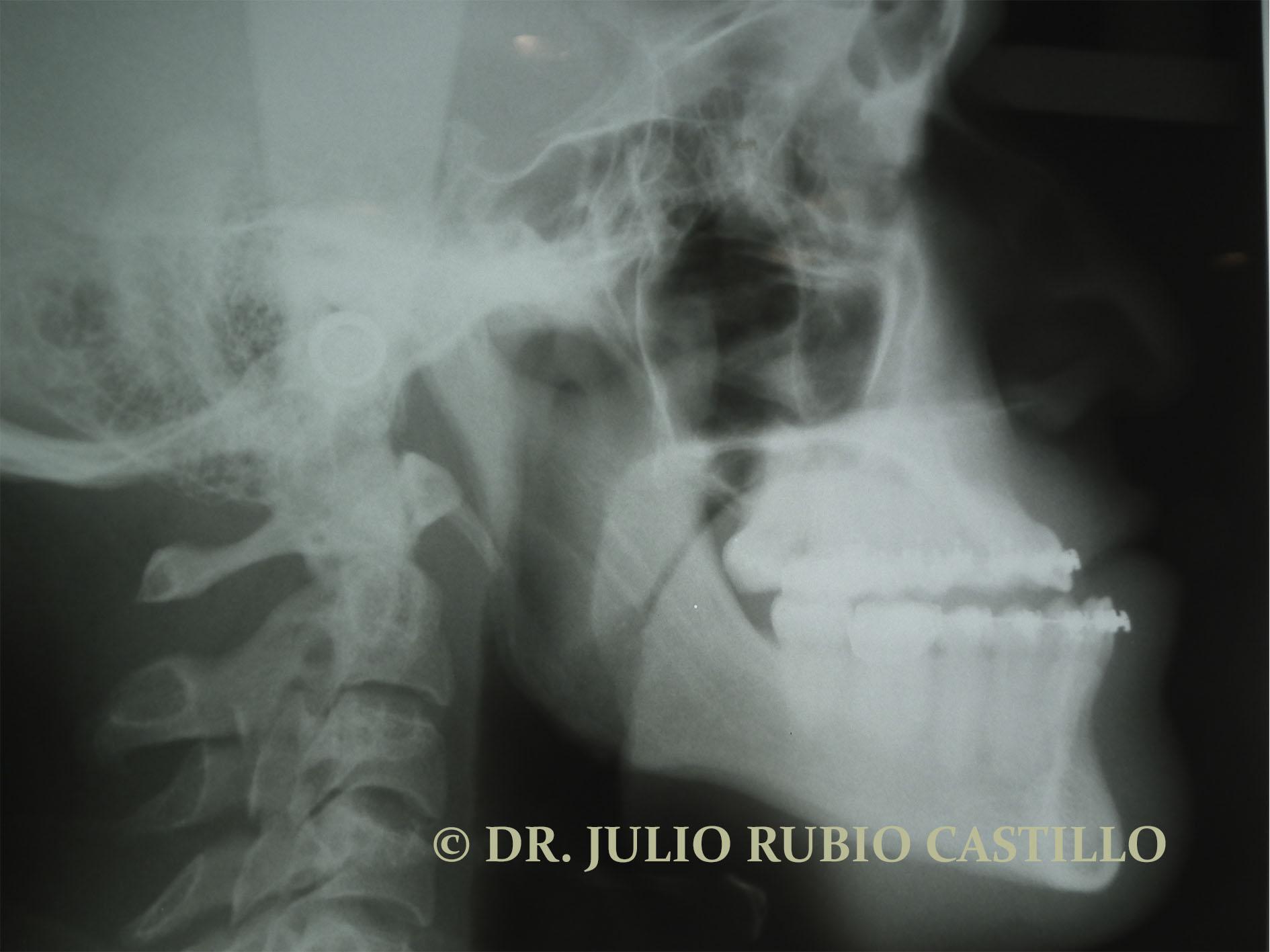 2_Radiografía_prequirúrgica