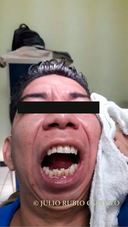 13 Apertura bucal de 2.8cm