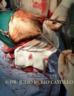 9 Transquirurgica