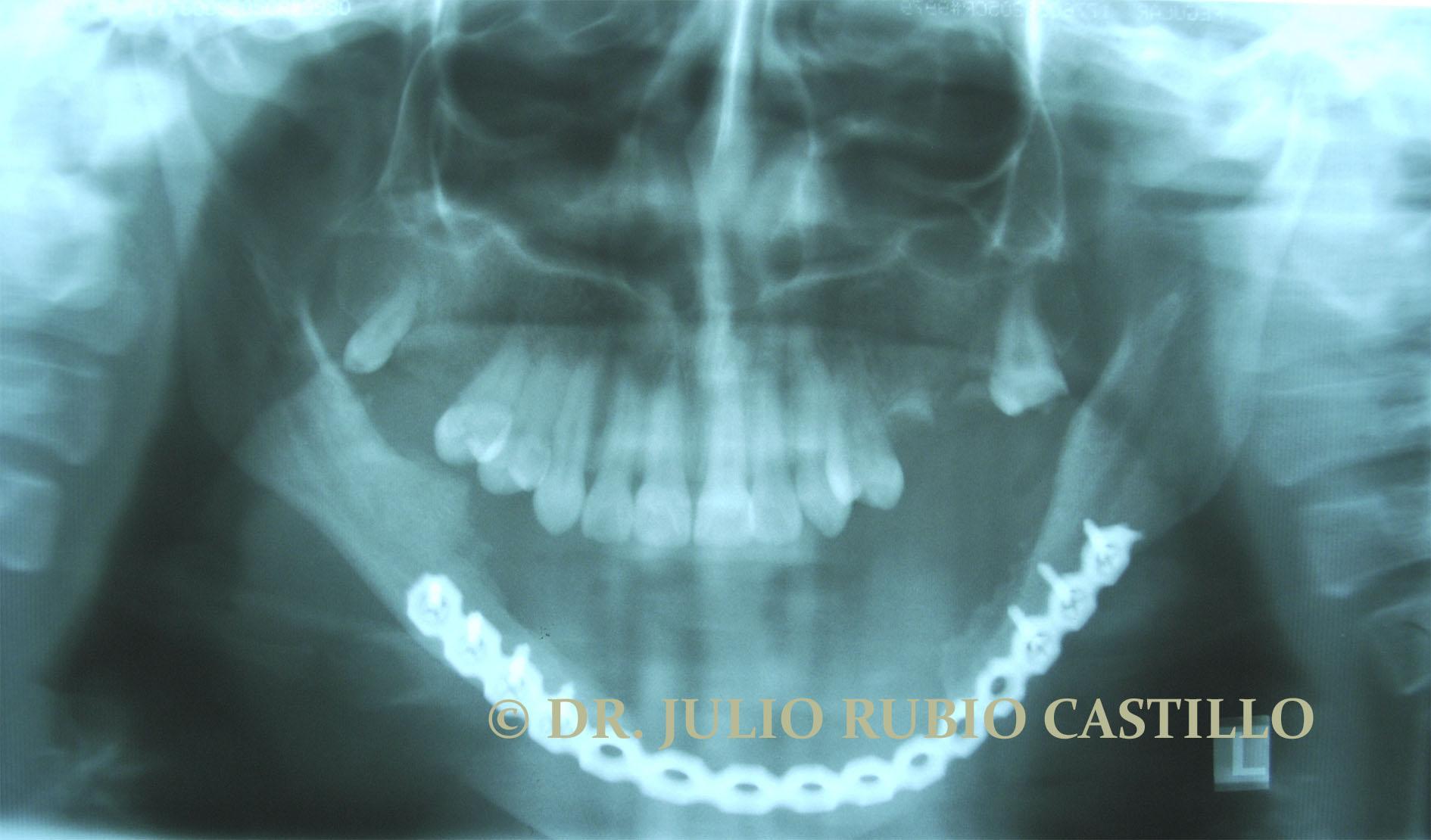 12_Radiografía_pos_operatorio