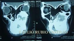 4_Tomografía_prequirúrgica