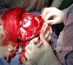 6 Transquirurgica