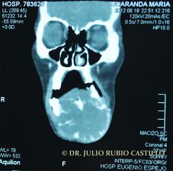 4_Tomografía_preoperatoria_de_frente