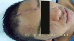 3 Prequirurgico