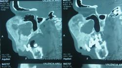 5_Tomografía_prequirúrgica