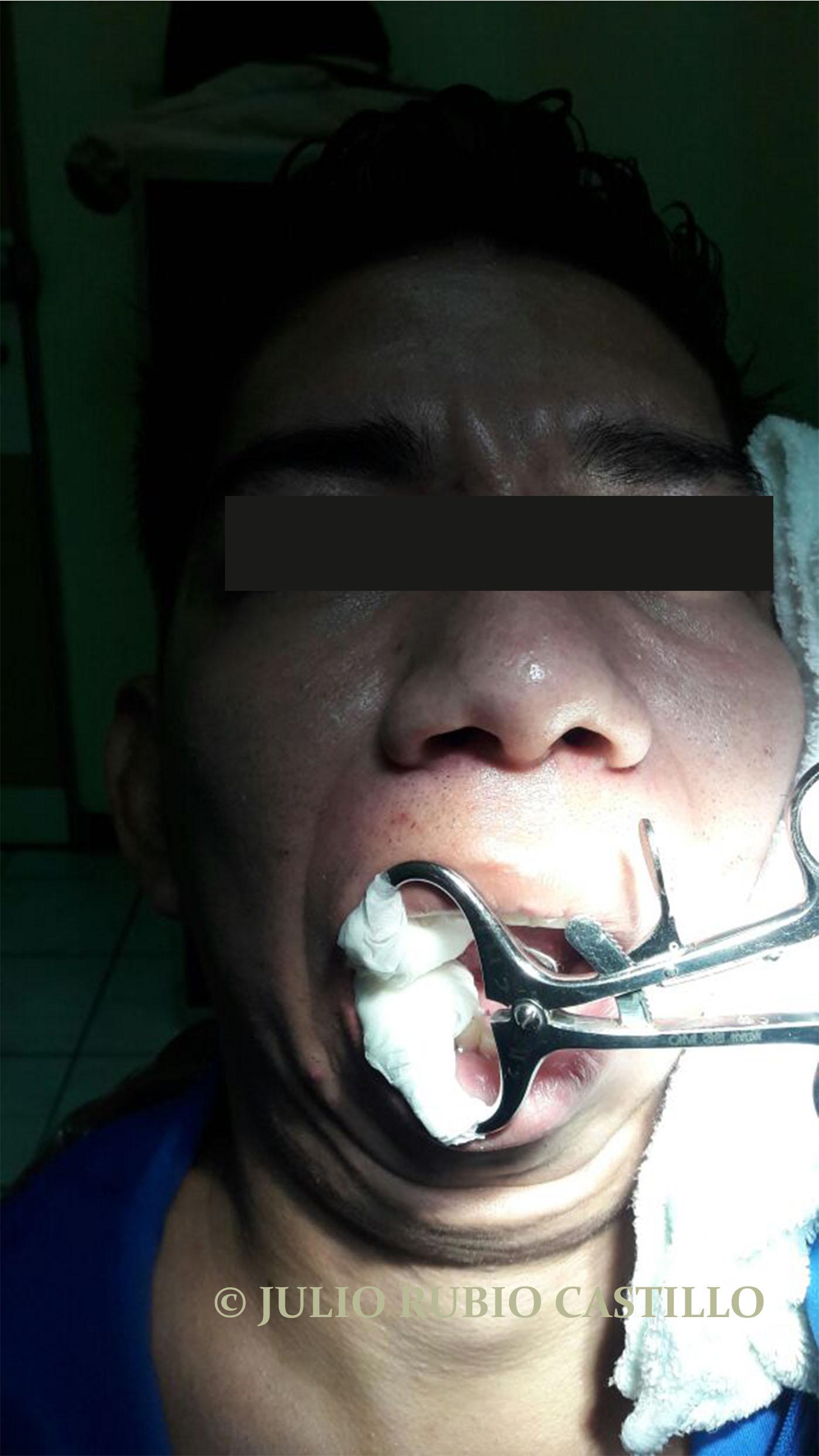 12 Rehabilitacion posoperatoria