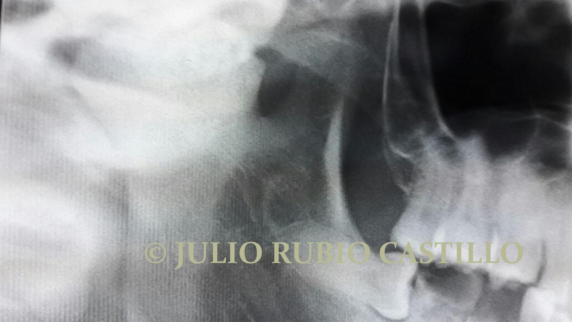 2 Anquilosis temporoandibular en panoramica