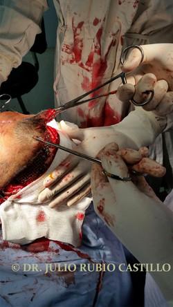 8 Transquirurgica