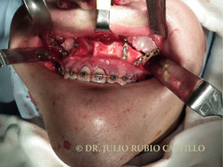 3 Transquirurgica Lefort 1