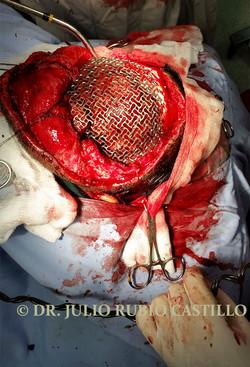 7 Transquirurgica