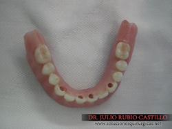 14_Prótesis_total_fija_sobre_implantes